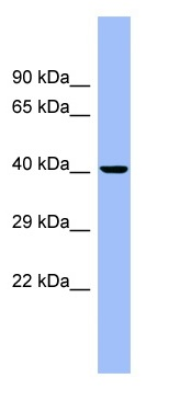 Western blot - CEACAM6 antibody (ab98109)