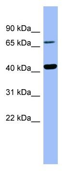 Western blot - HPD antibody (ab98110)