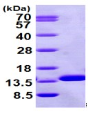 SDS-PAGE - beta 2 Microglobulin protein (ab98116)