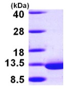 SDS-PAGE - DYNLRB1 protein (ab98120)