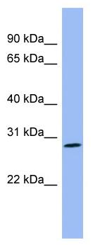 Western blot - Enkephalin antibody (ab98128)