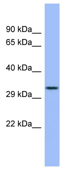 Western blot - FCN3 antibody (ab98136)