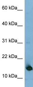Western blot - MED31 antibody (ab98142)