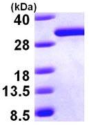 SDS-PAGE - DCXR protein (ab98147)