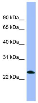 Western blot - Anti-Prepronociceptin antibody (ab98152)