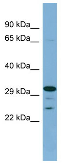 Western blot - DHRS9 antibody (ab98155)