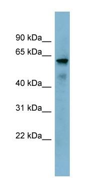 Western blot - METTL14 antibody (ab98166)