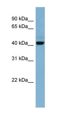 Western blot - OSCP1 antibody (ab98168)