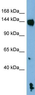 Western blot - NALP1 antibody (ab98181)