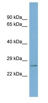 Western blot - WBP2 antibody (ab98184)
