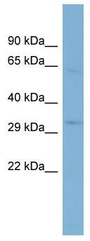 Western blot - TMEM110 antibody (ab98190)
