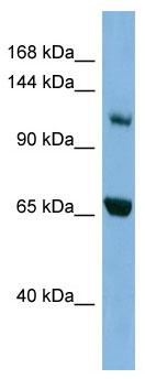 Western blot - MYO1E antibody (ab98191)