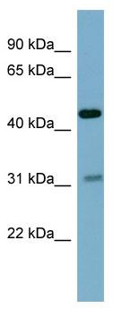 Western blot - OMD antibody (ab98193)