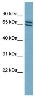 Western blot - PDE1C antibody (ab98194)