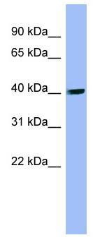 Western blot - PIP5K2 alpha antibody (ab98195)