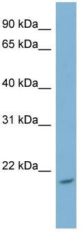 Western blot - NME4 antibody (ab98198)