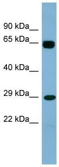 Western blot - LRRN4CL antibody (ab98199)