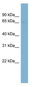 Western blot - PHF17 antibody (ab98209)
