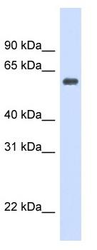 Western blot - Catalase antibody (ab98210)