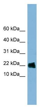 Western blot - GOLGA7 antibody (ab98217)