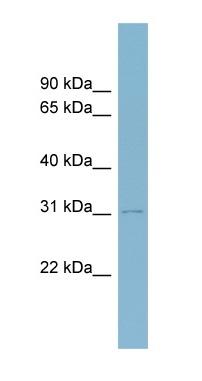 Western blot - MyoD1 antibody (ab98218)
