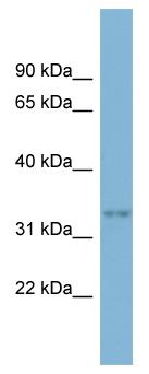 Western blot - dbx2 antibody (ab98223)