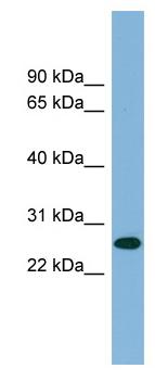 Western blot - SRRP35 antibody (ab98226)