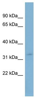 Western blot - SLC25A20 antibody (ab98227)