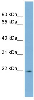 Western blot - Lbx2 antibody (ab98229)