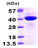 SDS-PAGE - CAB39 protein (ab98230)
