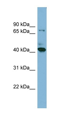Western blot - HERPUD2 antibody (ab98235)