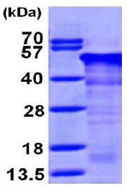 SDS-PAGE - RCN1 protein (ab98241)