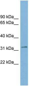 Western blot - TMEM163 antibody (ab98245)