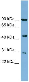 Western blot - NPR2L antibody (ab98250)