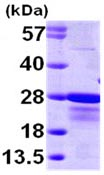 SDS-PAGE - CBFb protein (ab98252)