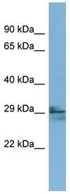 Western blot - LIM2 antibody (ab98277)