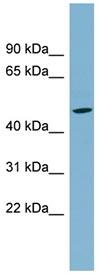 Western blot - SLC25A24 antibody (ab98278)