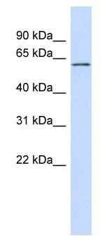 Western blot - IRTA1 antibody (ab98279)
