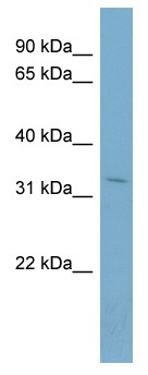 Western blot - OTUB1 antibody (ab98280)