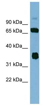 Western blot - OSGEP antibody (ab98281)
