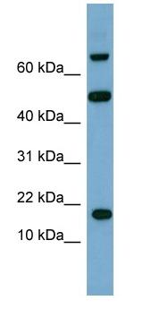 Western blot - TSC22D1 antibody (ab98283)