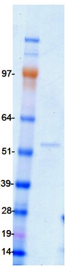 SDS-PAGE - HNF6 protein (ab98300)