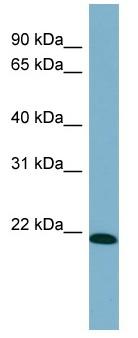 Western blot - TIRAP antibody (ab98308)
