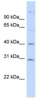 Western blot - FAM50B antibody (ab98313)