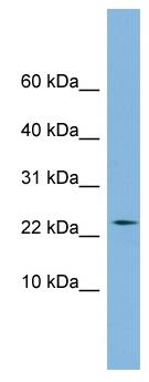 Western blot - PPIL3 antibody (ab98315)