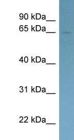 Western blot - Homez antibody (ab98318)