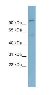 Western blot - TBL3 antibody (ab98321)