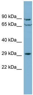 Western blot - CUTC antibody (ab98331)