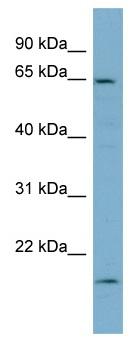 Western blot - T Plastin antibody (ab98340)