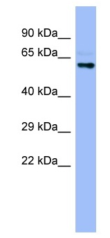 Western blot - Seladin 1 antibody (ab98345)